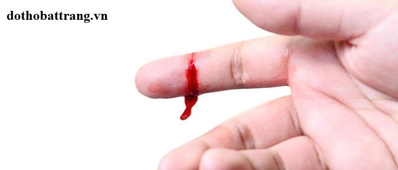 Mơ thấy đứt tay chảy máu là điềm gì 1
